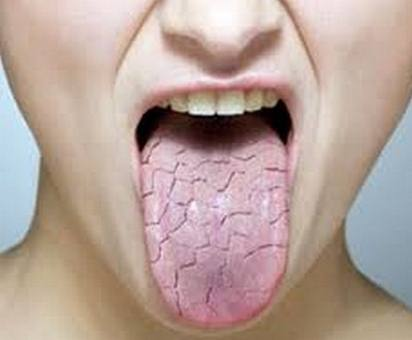 Fissured Tongue photo Fissured Tongue   Treatment, Causes, Pictures and Symptoms