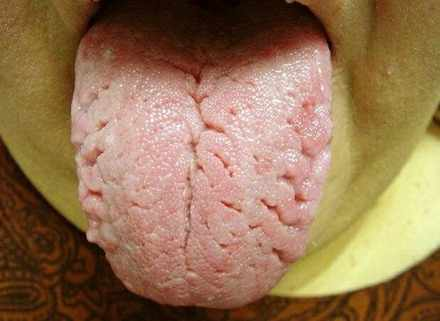 Fissured Tongue photos Fissured Tongue   Treatment, Causes, Pictures and Symptoms