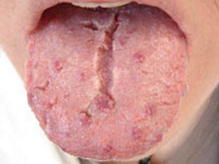 Fissured Tongue pics Fissured Tongue   Treatment, Causes, Pictures and Symptoms