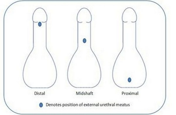 hypospadias severity by urethra position