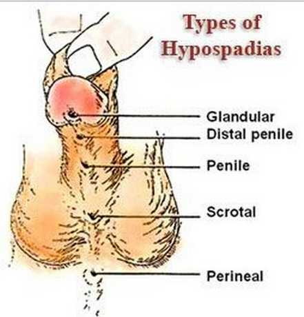 types of hypospadias