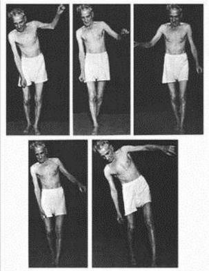 meniere disease diagnostic test